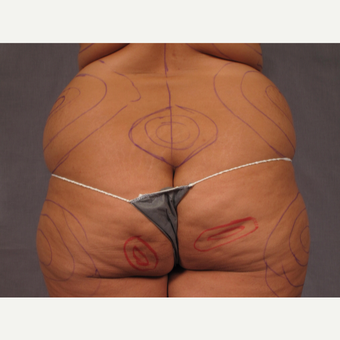 35-44 year old woman treated with Brazilian Butt Lift before 3308503