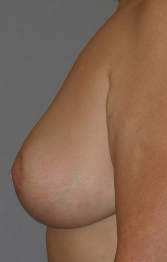 55 year old female-Breast Reduction after 1317525