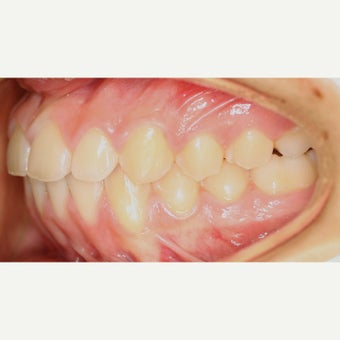 17 or under year old teen with underbite treated with Braces after 1731817