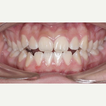 17 or under year old teen with underbite treated with Braces 1731817