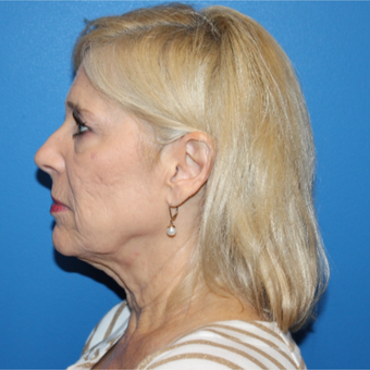 55-64 year old man treated with Facelift before 3281310