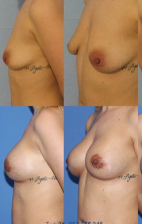 Scar sparing mastopexy with implants and lipofilling, Cirumed's signature operation