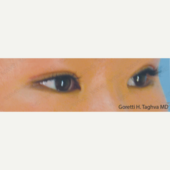 18-24 year old woman treated with Asian Eyelid Surgery after 3347019