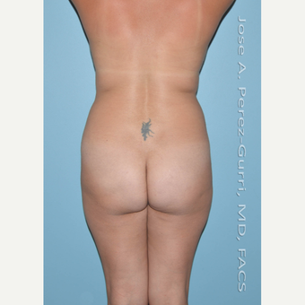 25-34 year old woman treated with Brazilian Butt Lift before 3056466