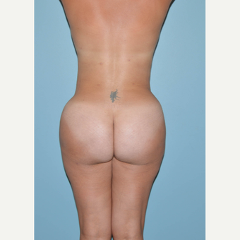 25-34 year old woman treated with Brazilian Butt Lift after 3056466
