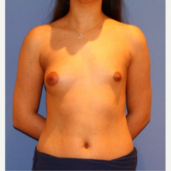 18-24 year old woman treated with Breast Implants before 1692197