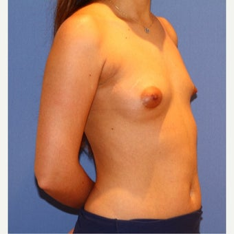 18-24 year old woman treated with Breast Implants 1692197