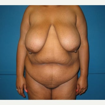 Body lift on 32 year old female.  A breast reduction, tummy tuck, and lipostuction were performed in a single operation before 1810310