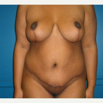 Body lift on 32 year old female.  A breast reduction, tummy tuck, and lipostuction were performed in a single operation after 1810310