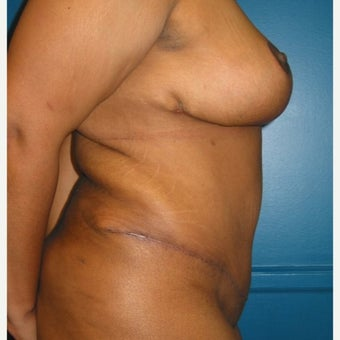 Body lift on 32 year old female.  A breast reduction, tummy tuck, and lipostuction were performed in a single operation 1810310