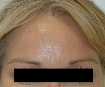 Dysport Injections Orange County Before and After after 349211