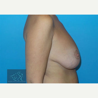 45-54 year old woman treated with Breast Implants before 3591246