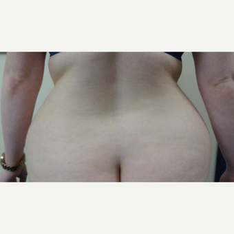 25-34 year old woman treated with Vaser Liposuction before 3428741