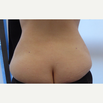 25-34 year old woman treated with Vaser Liposuction after 3428741