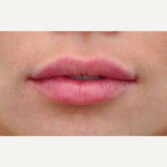 25-34 year old woman treated with Lip Augmentation after 3140345