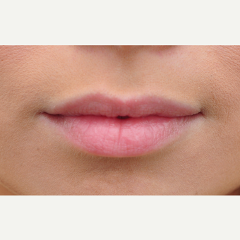 25-34 year old woman treated with Lip Augmentation before 3140345