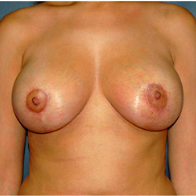 33 year old woman treated with Breast Lift after 3666132