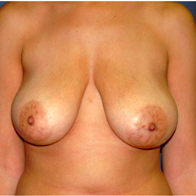 33 year old woman treated with Breast Lift before 3666132