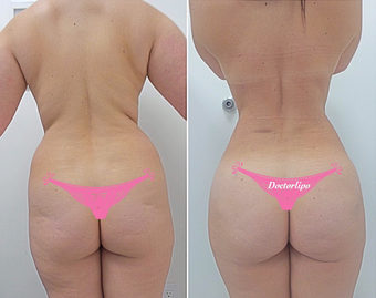 35-44 year old woman treated with Laser Liposuction