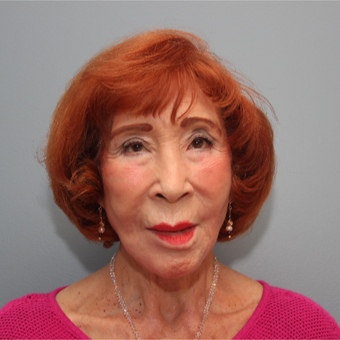 83 year old woman treated with Fat Transfer to the Pre-Jowls after 3544480