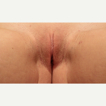 18-24 year old woman treated with Labiaplasty after 3289175