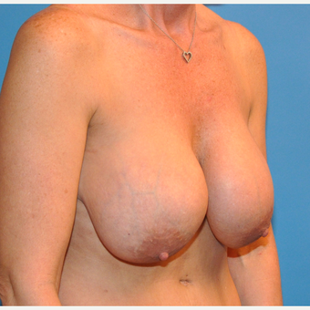 Breast Implant Removal and Lift before 2995041
