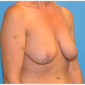 Breast Implant Removal and Lift after 2995041