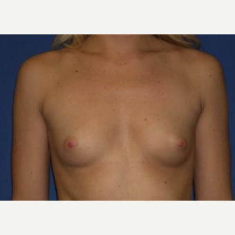 25-34 year old woman treated with Breast Augmentation before 3220054