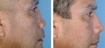 Revision Rhinoplasty before 1208277