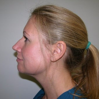35-44 year old woman treated with 1 treatment Kybella after 2252526