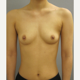 25-34 year old woman treated with Breast Augmentation before 3842588