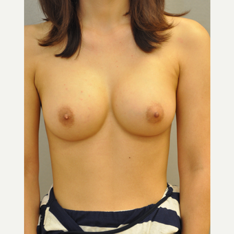 25-34 year old woman treated with Breast Augmentation after 3842588