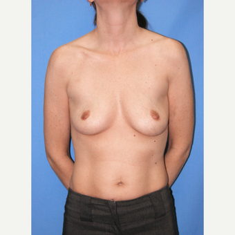 35-44 year old woman treated with Breast Implants before 3095177
