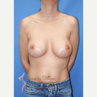 35-44 year old woman treated with Breast Implants after 3095177