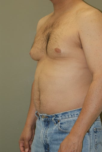 Gynecomastia before 356872