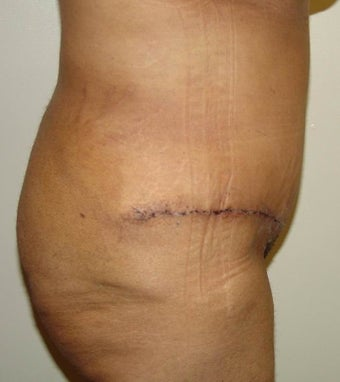 Abdominoplasty after 96421