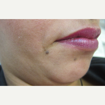 28 year old lady with 2 moles removed from chin before 2794018