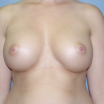 30 year old woman treated with Breast Implants after 3042666