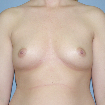 30 year old woman treated with Breast Implants before 3042666