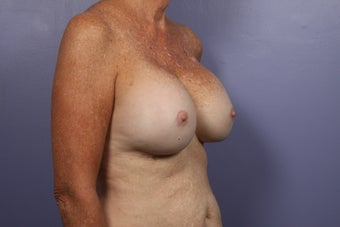 63 yr old Breast Revision before 957279