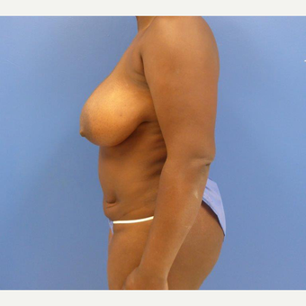 32 y.o. – female – Wise pattern mastopexy with abdominoplasty (mommy makeover) before 3401337