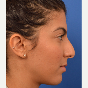 Rhinoplasty results before 3220513