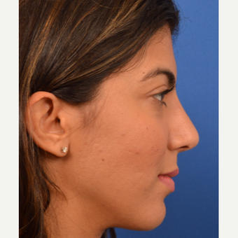 Rhinoplasty results after 3220513