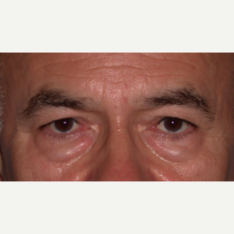 55-64 year old man treated with Brow Lift before 3702898