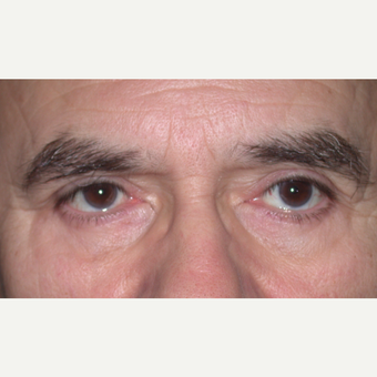 55-64 year old man treated with Brow Lift after 3702898