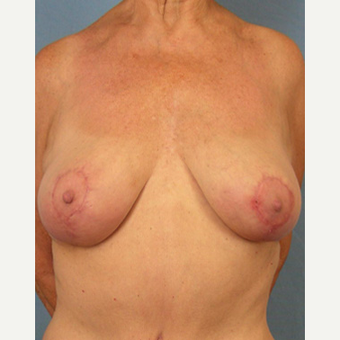 55-64 year old woman treated with Breast Lift after 3605019