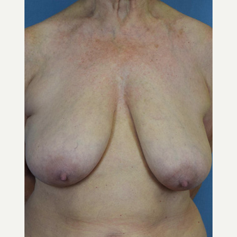 55-64 year old woman treated with Breast Lift before 3605019