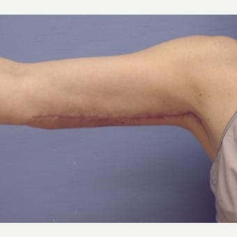 55-64 year old woman treated with Arm Lift after 3181600