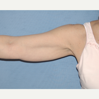 55-64 year old woman treated with Arm Lift before 3181600
