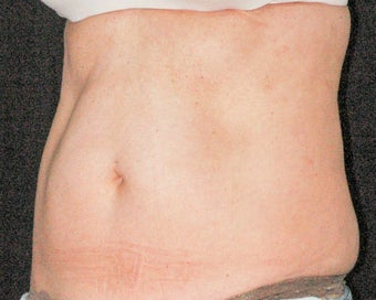 45-55 SculpSure Client after 2 treatments  before 3536253